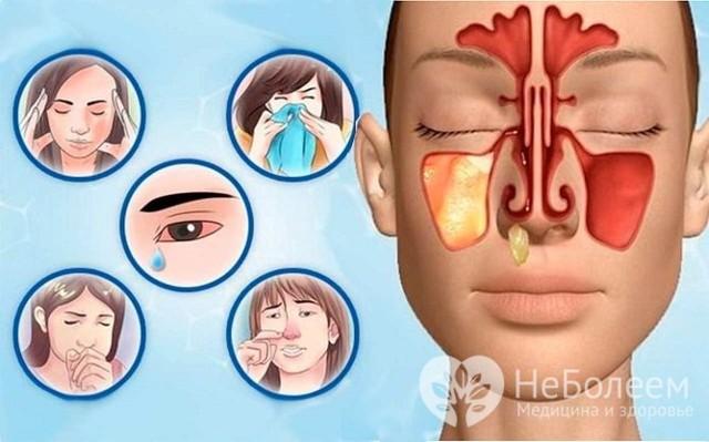 Симптомы и признаки хронического гайморита у взрослых