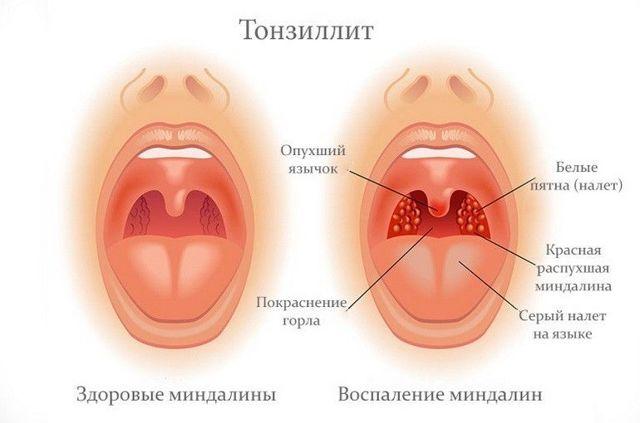 Заразен ли тонзиллит и как он передается
