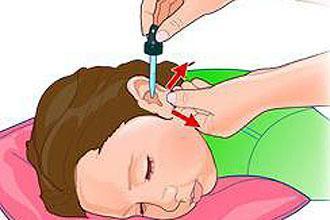 Настойка календулы в ухо для лечения – инструкция по применению и закапыванию