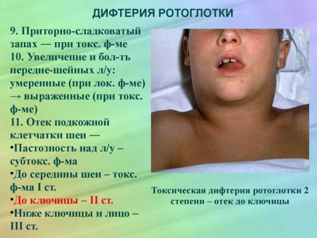 Что такое дифтерия - признаки, симптомы и лечение взрослых и детей