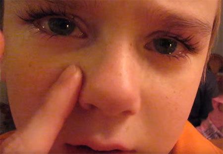 Перелом носа у ребенка – симптомы и признаки (как понять, что он сломан)