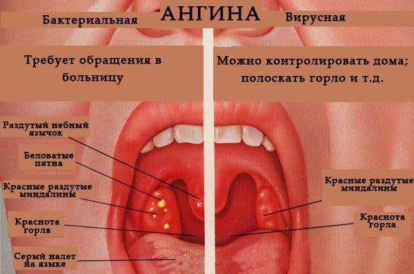 Как лечить ангину у взрослого быстро – первая помощь и лучшие методы
