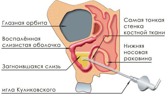 Как делают прокол при гайморите - техника пункции гайморовой пазухи