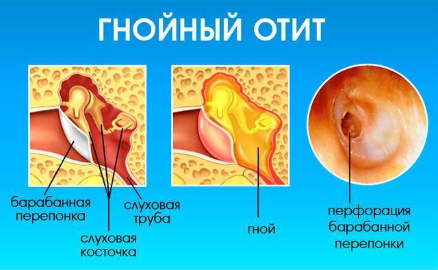 Заразен ли отит и как передается заболевание
