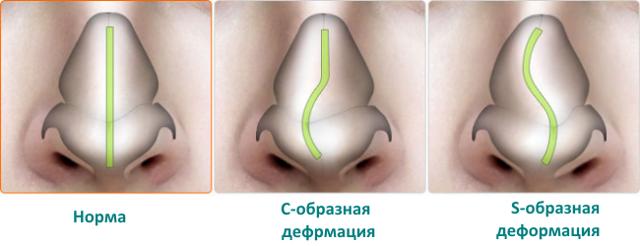 Что делать при ушибе и ударе по носу – как быстро вылечить опухоль