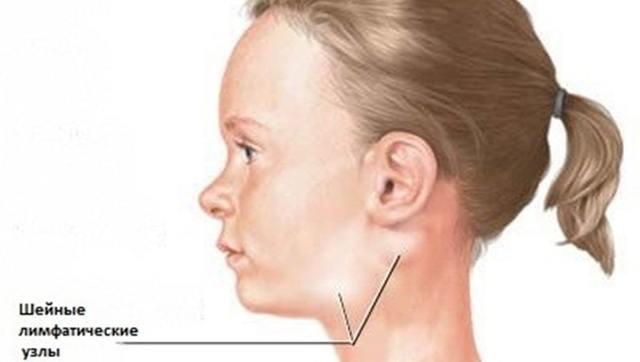 Стрептококк в горле у ребенка – чем и как лечить детей
