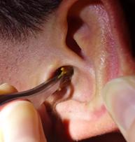 Серная пробка в ухе – лечение и удаление в домашних условиях (как почистить и пробить)