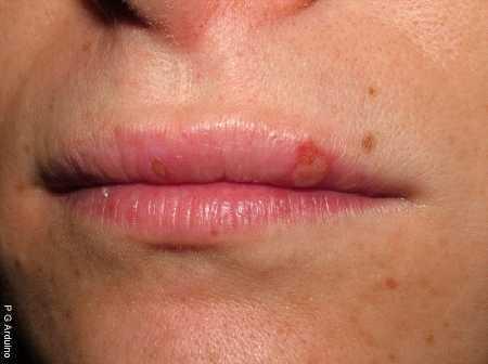 Виды фарингита - герпетический и хламидийный, герпесный и инфекционный и др.