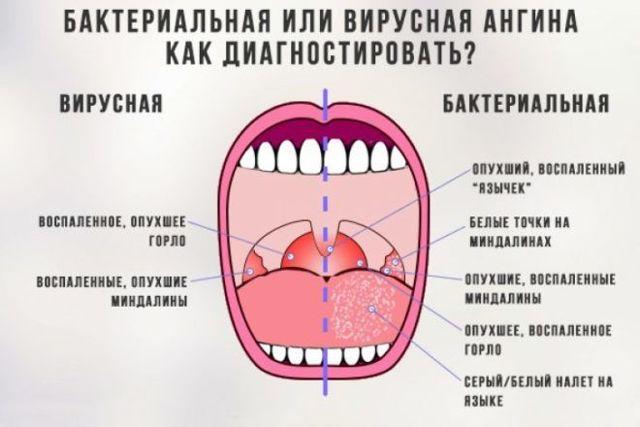 Бактериальный тонзиллит - симптомы и лечение в домашних условиях