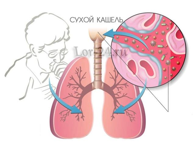 Сухой изнуряющий кашель у взрослого и ребенка – чем и как лечить