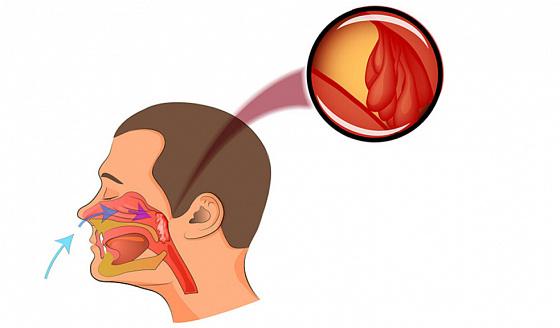 Заболевание носоглотки – их симптомы и лечение