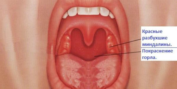 Заболевания гортани – симптомы и лечение болезней