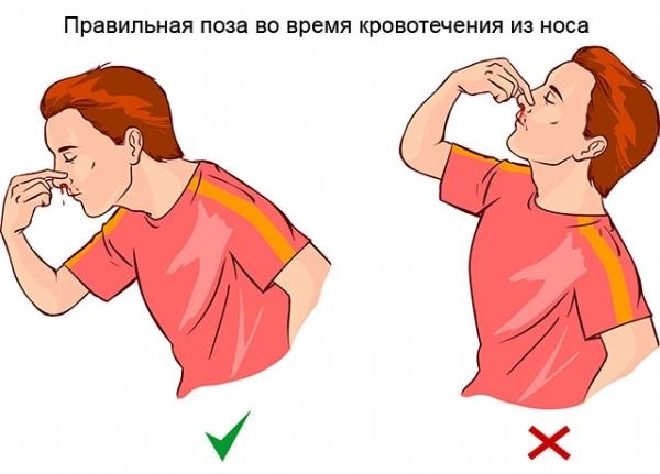 Как остановить кровь из носа у взрослого – что делать при кровотечении
