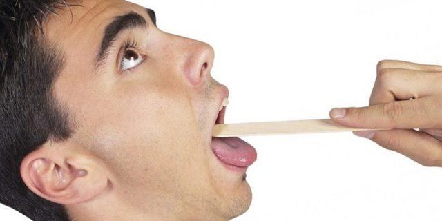 Болезни горла - какие бывают хронические заболевания