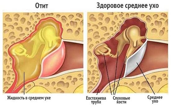 Боль в ухе при глотании — причины и что делать, если отдает в ухо