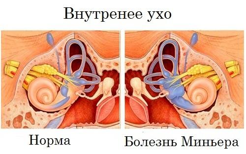 Болезнь Меньера – симптомы и лечение синдрома амбулаторно и народными средствами