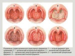 Ларингит при беременности – последствия для плода