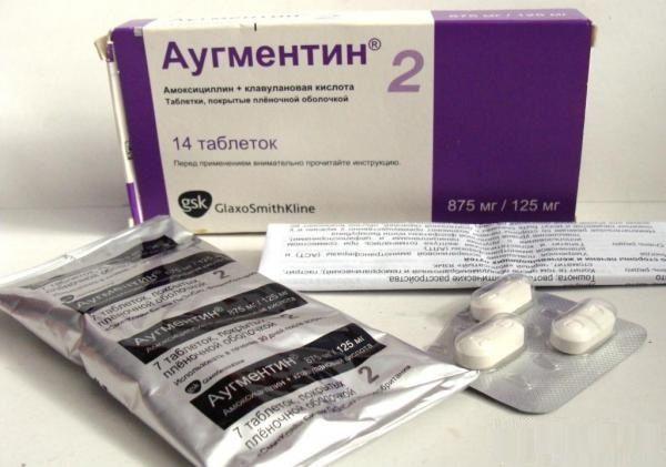 Антибиотики при гайморите у детей - какие средства принимать для лечения