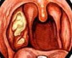 Некротическая ангина - симптомы и лечение язвенного и гнойного тонзилита