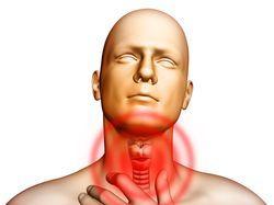 Красные точки в горле – сыпь и высыпания у взрослых