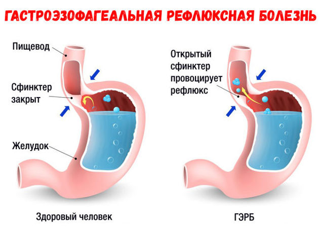 Удушающий кашель у ребенка - что делать и как лечить детей