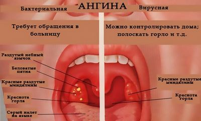 Заразна ли фолликулярная ангина или нет и каким путем она передается