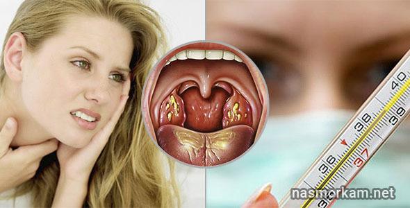 Белые точки на миндалинах в горле - пятна на гландах у взрослого