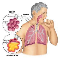 При кашле болит под ребрами – почему возникает боль и что делать
