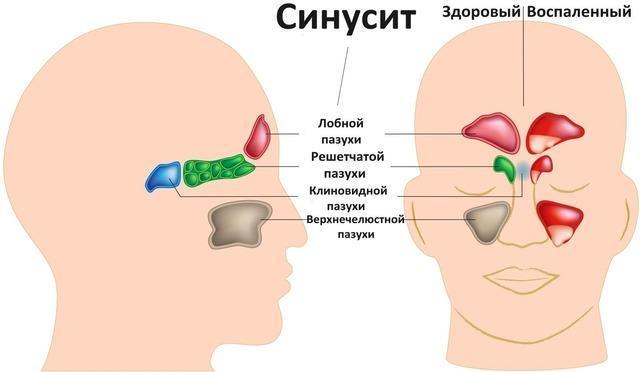 Гайморит и синусит - в чем разница и чем они отличаются