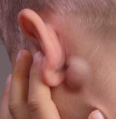 Шарик и уплотнение за ухом – что это и как лечить шишку