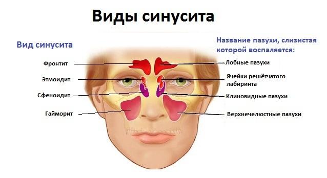 Двухсторонний гайморит и верхнечелюстной синусит
