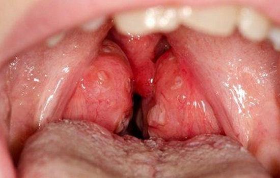 Гипертрофия миндалин – увеличенные гланды у взрослых: симптомы и лечение