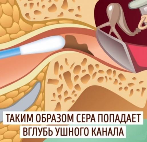 Ушные капли от боли в ухе у взрослого – лучшее обезболивающее