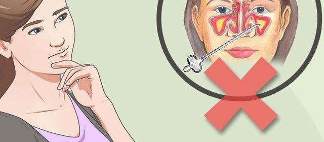 Лечение гайморита без проколов - как можно быстро это сделать