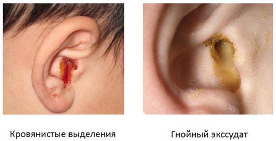 Почему много серы в ушах – причины обильного выделения у взрослого