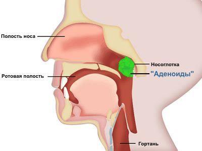 Что такое глоточная миндалина - как устроена и возможные заболевания