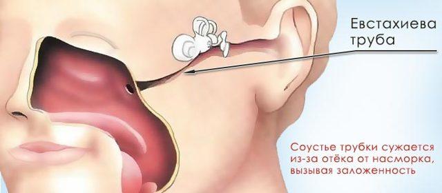 Заложенность уха: причины и последствия, способы лечения