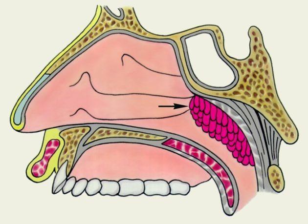 Удаление аденоидов - как проходит операция