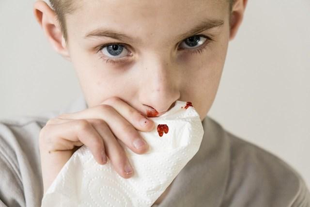 Почему у ребенка часто идет кровь из носа – причины частых кровотечений