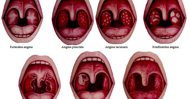 Виды ангин – какие бывают разновидности острого тонзиллита у взрослых