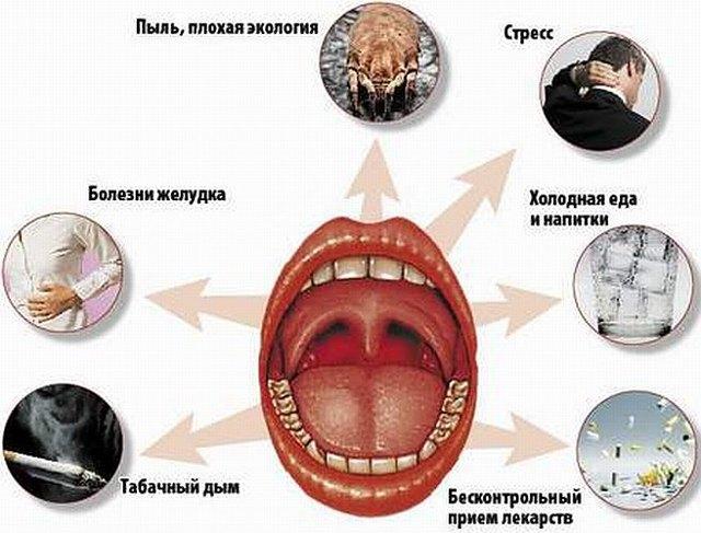 Признаки и симптомы хронического тонзиллита у взрослых