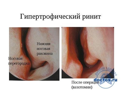 Долго не проходит насморк у взрослого - затяжное и длительное заболевание