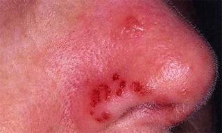 Герпес на носу – причины и быстрое лечение в домашних условиях
