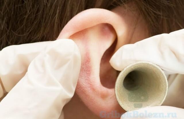 Лечение отомикоза и грибка ушей у человека