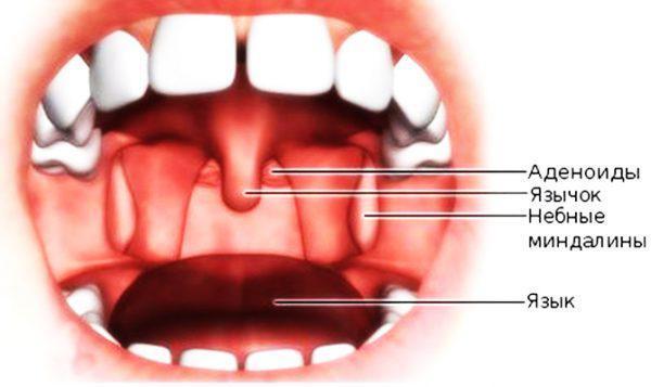 Дырки в гландах и миндалинах – что это и как лечить