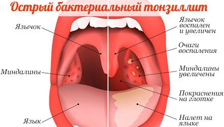 Диета при ангине у взрослых (питание) – что можно и что нельзя есть