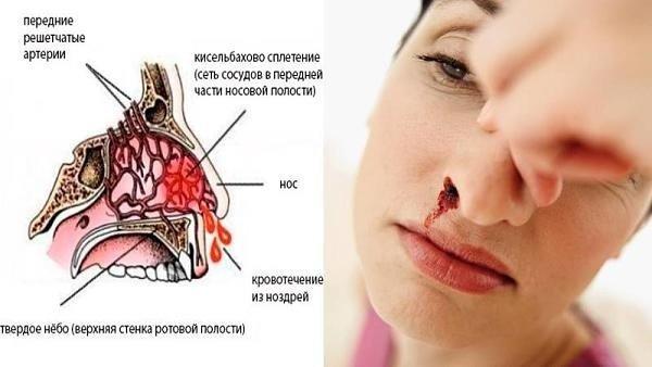 Лечение кровотечения из носа – как укрепить сосуды, чтобы не шла кровь