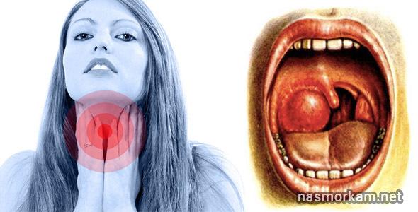 Болит миндалина или гланда с одной стороны (правая или левая)