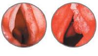 Рак горла и гортани – что это такое и сколько живут