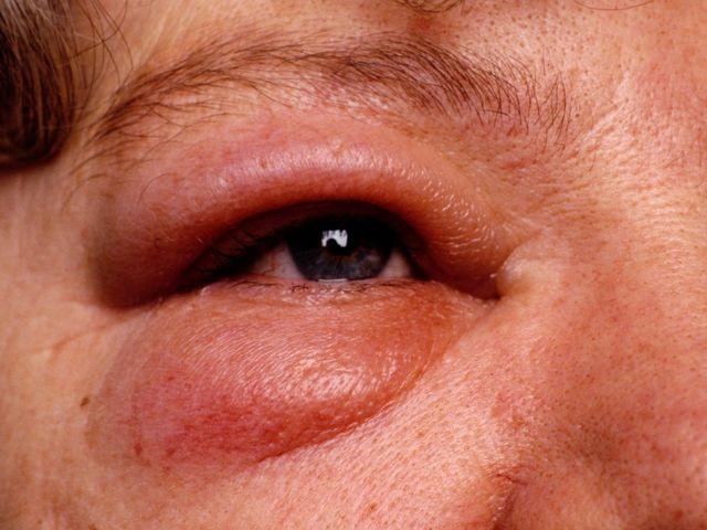 Этмоидит – симптомы лечение у взрослых